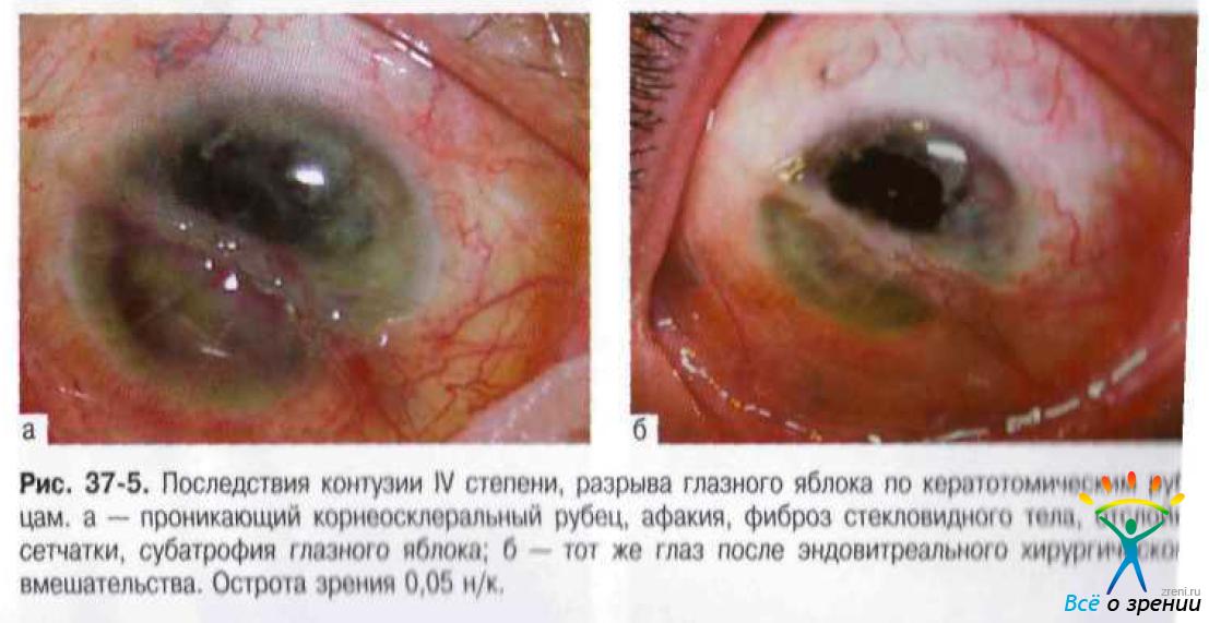 Капли для глаз улучшающие зрение отзывы