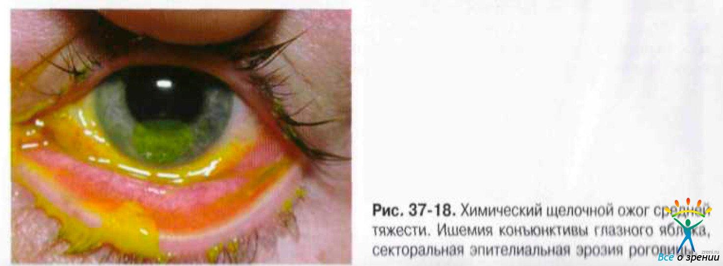 Некроз Лучевой фото
