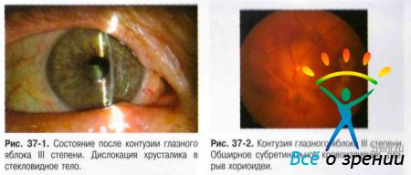 Контузия глаза лечение