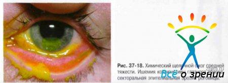 Код при ожоге глаз