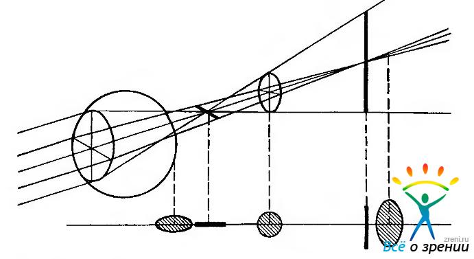 Описание тонометр измерения внутриглазного давления