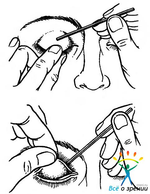 Методы исследования органа зрения │ Часть 1
