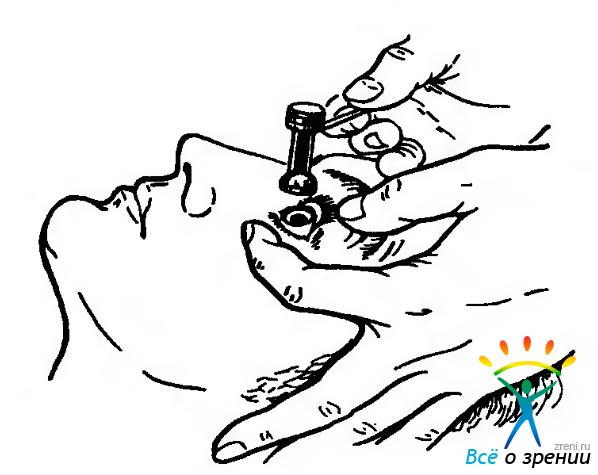 Метод коррекции зрения