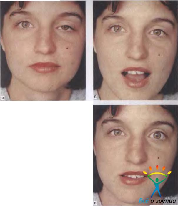 Офтальмоплегия фото