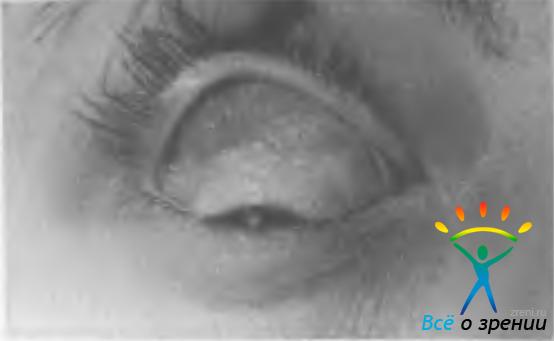 Операция орбиты глаза