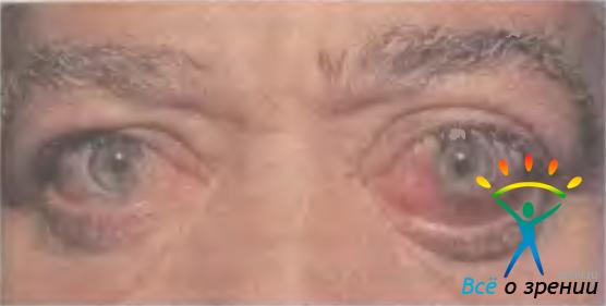 народные методы лечения зрительного нерва SmartWoolАмериканская компания