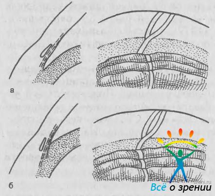 Закрытоугольная или узкоугольная глаукома