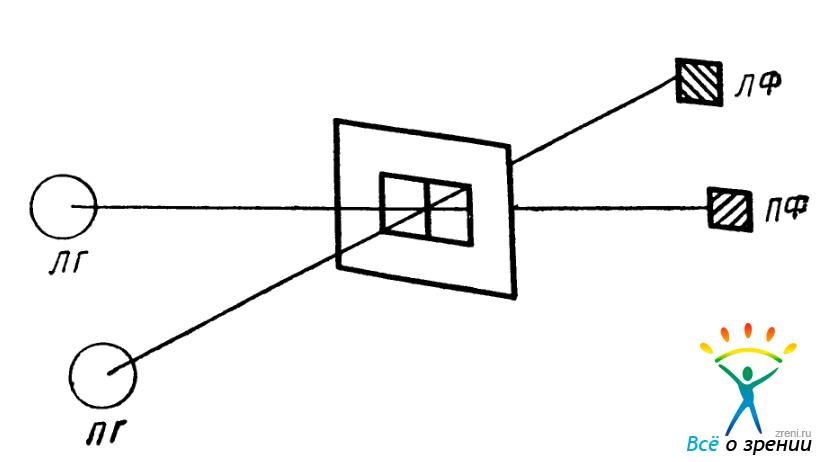 Правый глаз (ПГ) видит нить и