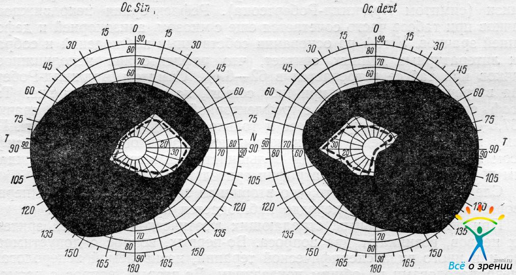 Компьютерные программы лечения косоглазия и амблиопии