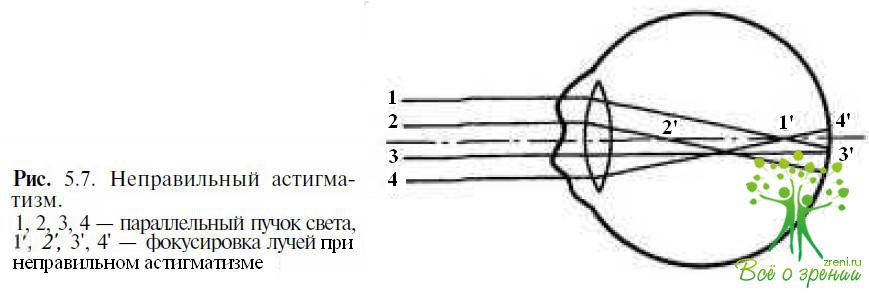 Зрение минус 4 с половиной