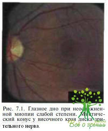 Клиническая картина осложненной близорукости