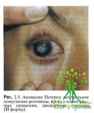 Патогенез врожденной глаукомы