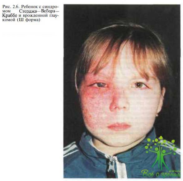 Синдром Стерджа-Вебера фото