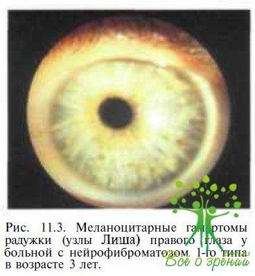 Характеристики и описание о нейрофиброматоз i типа