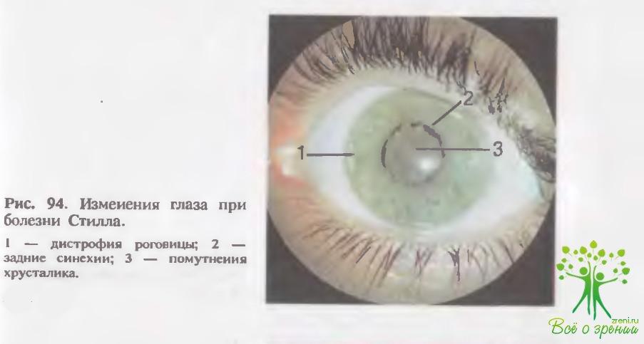Аномалия и воспаление сосудистой оболочки глаза (I)
