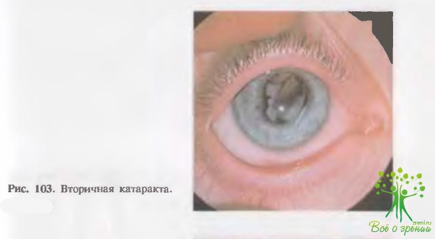 Коррекция зрения в тюмени визус 1