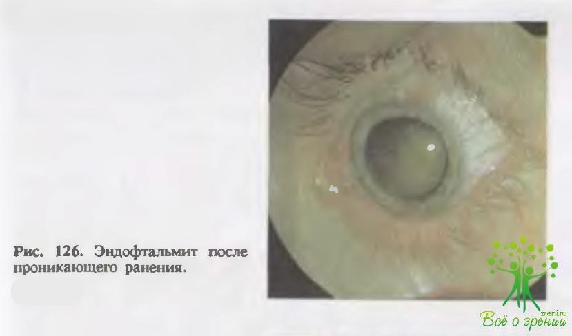 Офтальмия фото