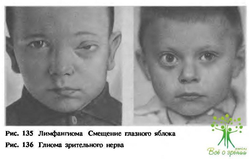 Опухоли глаз (I)