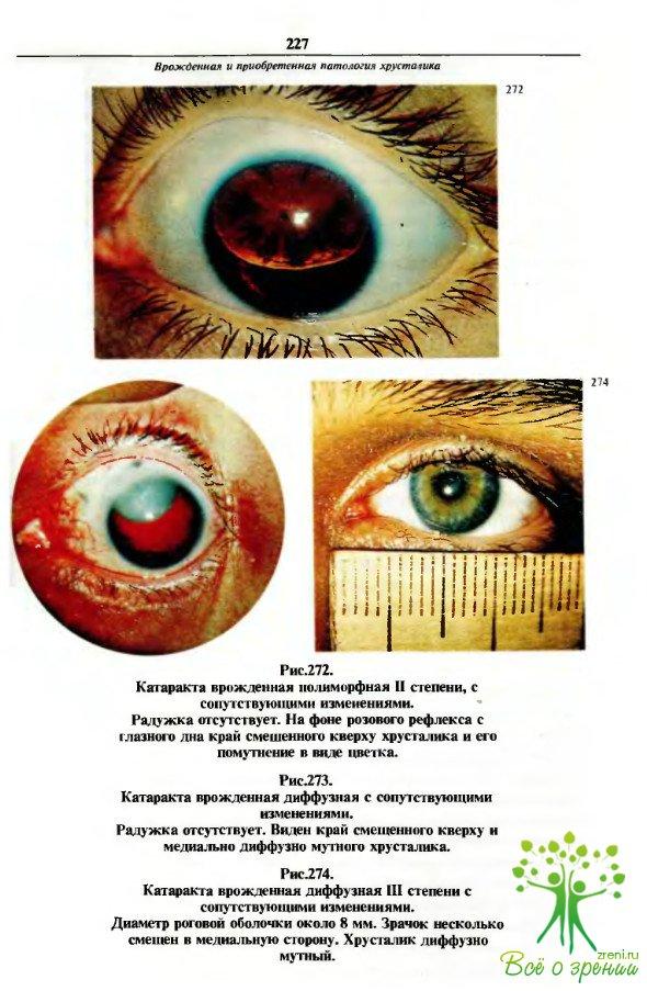 Книги глазные болезни скачать бесплатно