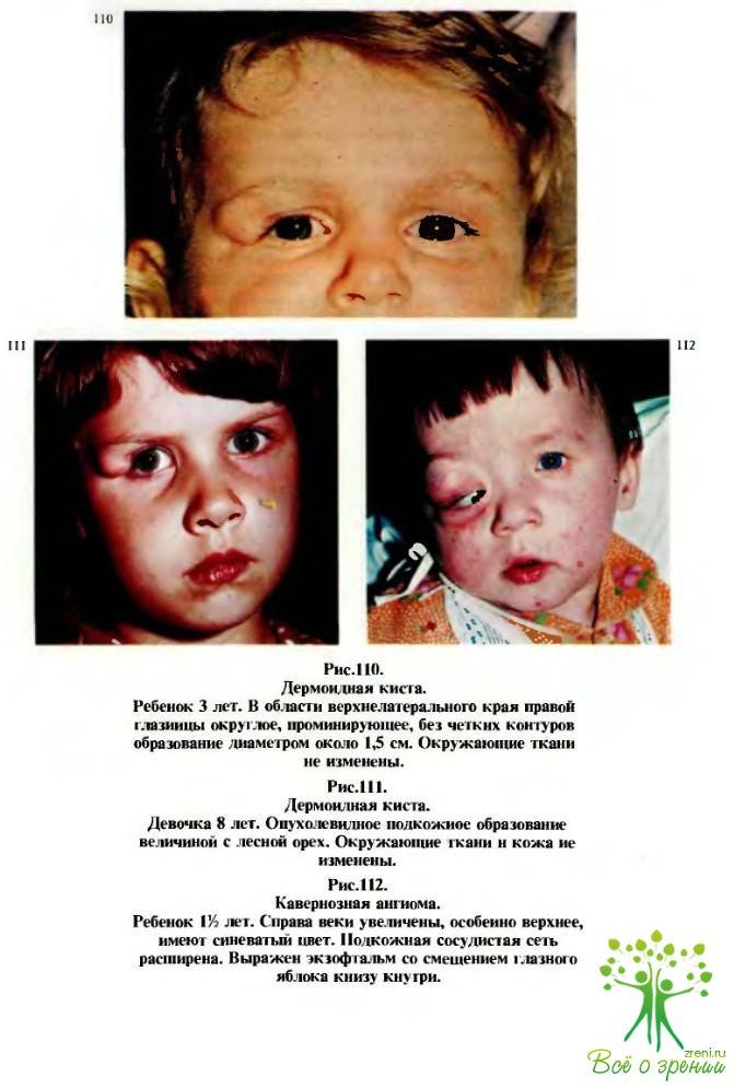 Рабдомиосаркома у детей