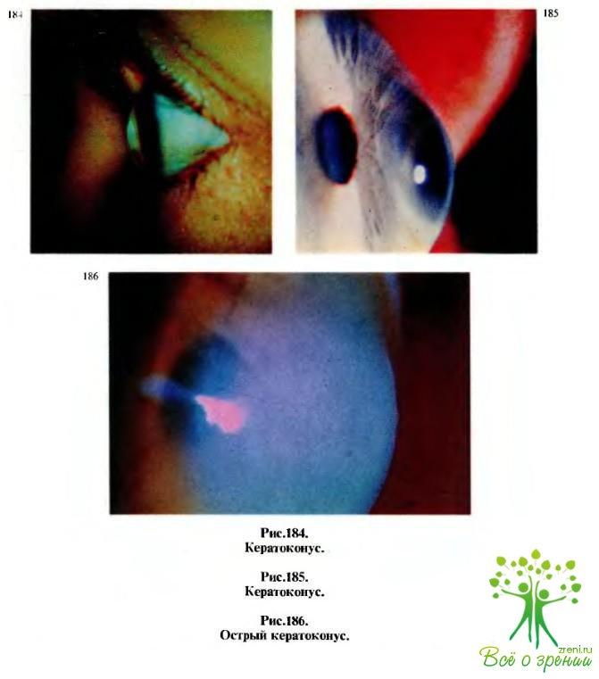 Методы восстановления зрения гимнастикой для глаз