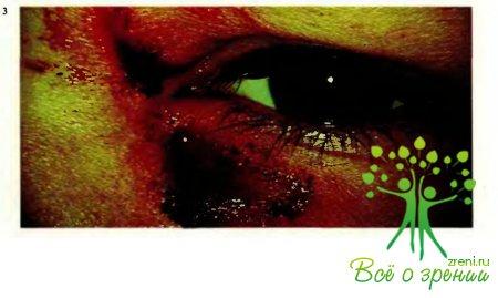 Повреждения придаточного аппарата глаза и глазного яблока. Диагностика