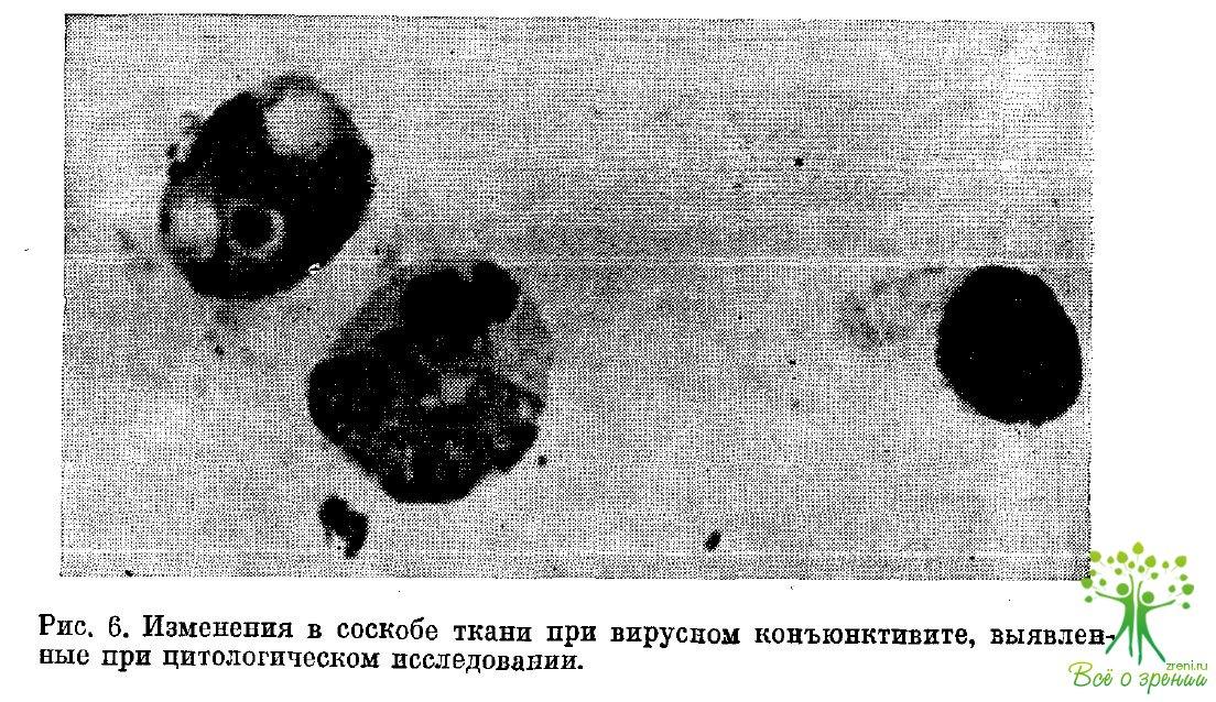 Офтальмия снежная фото