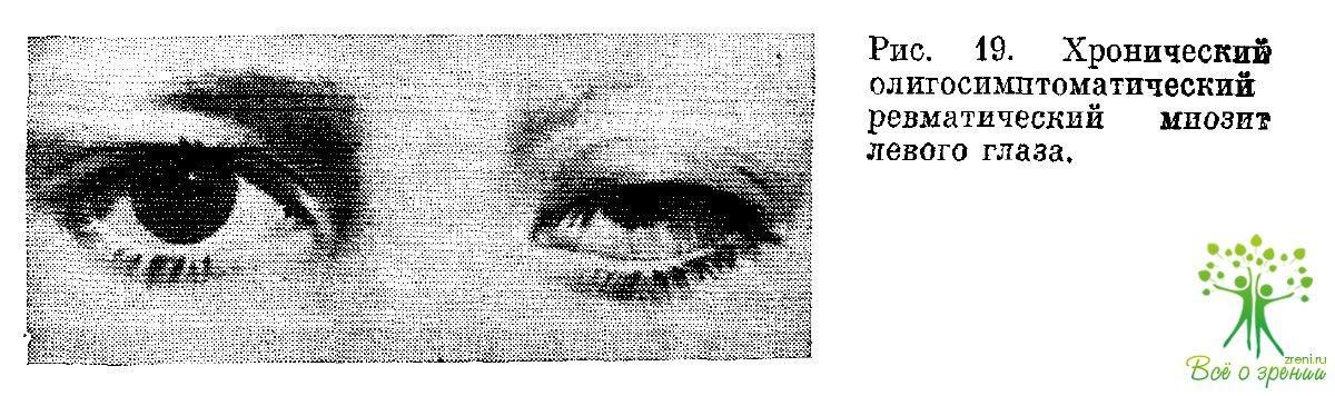 Ревматические заболевания глаз (Часть 1)