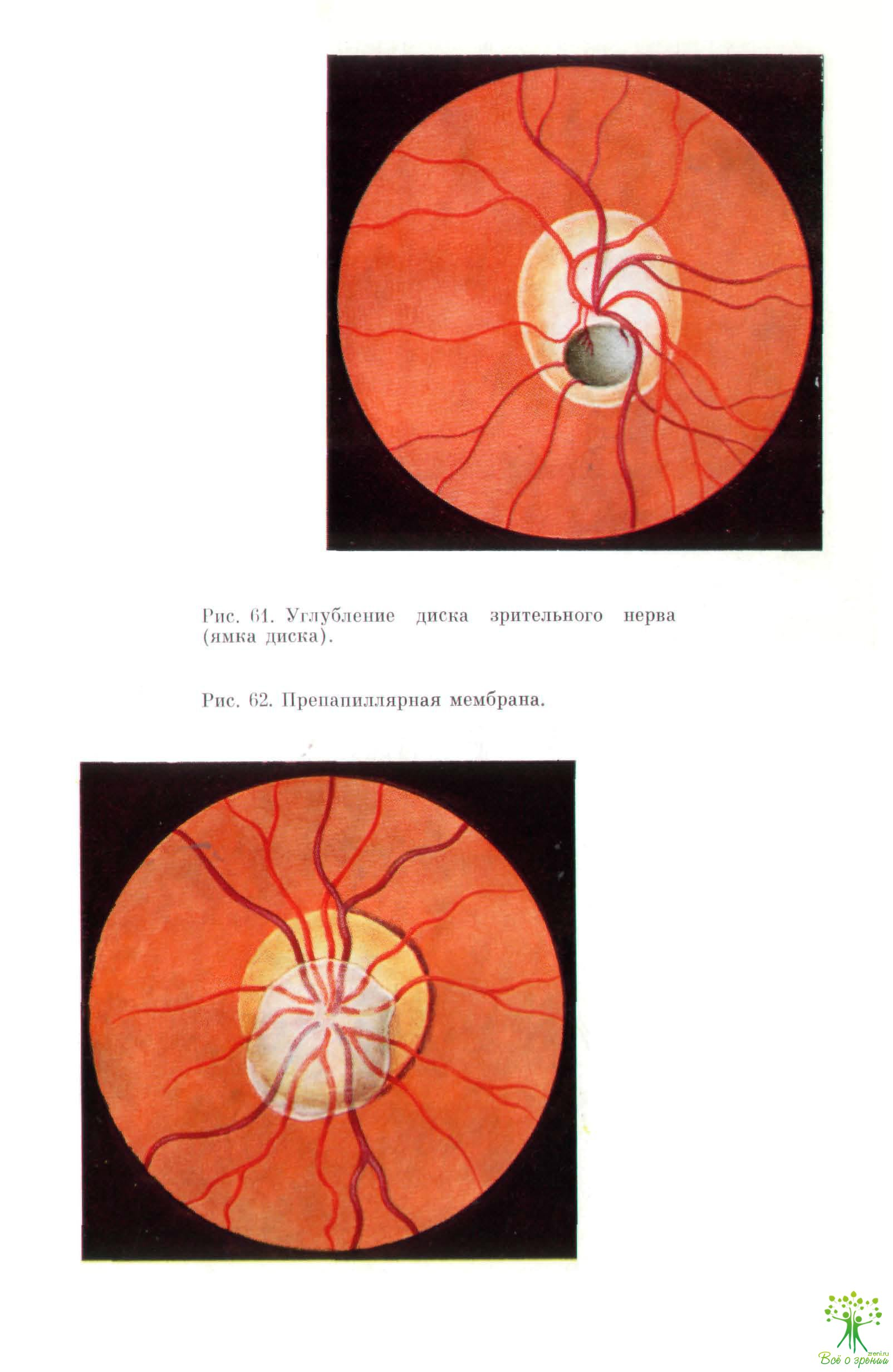 Отек диска зрительного нерва