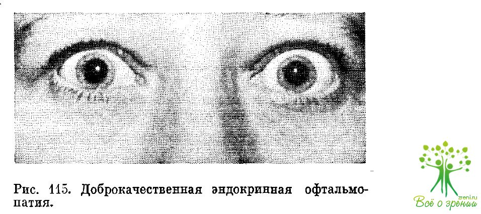 Симптом Штельвага фото
