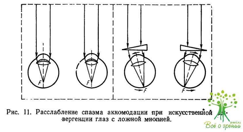 Циклоплегия