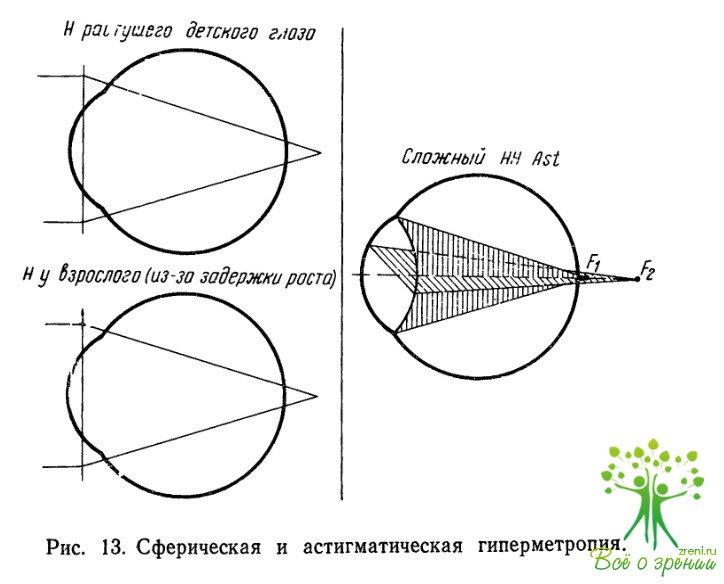 Операция коррекция зрения цена иркутск