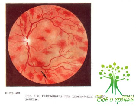 Перед глазами при анемии