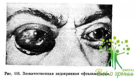 Болят глаза при тиреотоксикозе