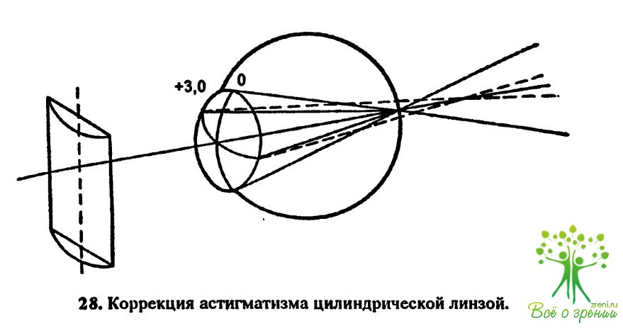 Лазерная коррекция зрения оренбург цены стоимость