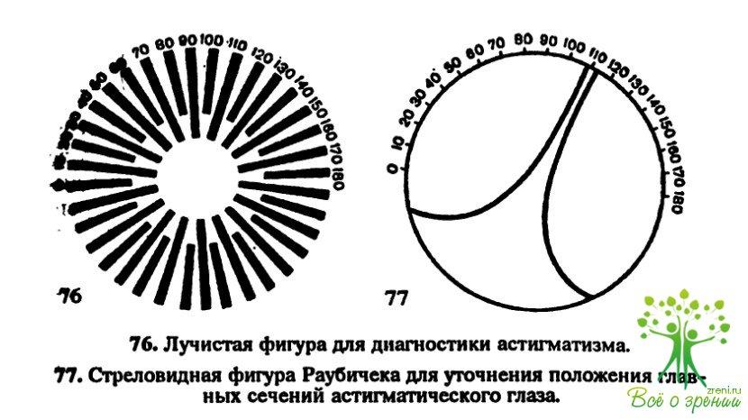 Сколько стоит операция на глаза астигматизм в волгограде