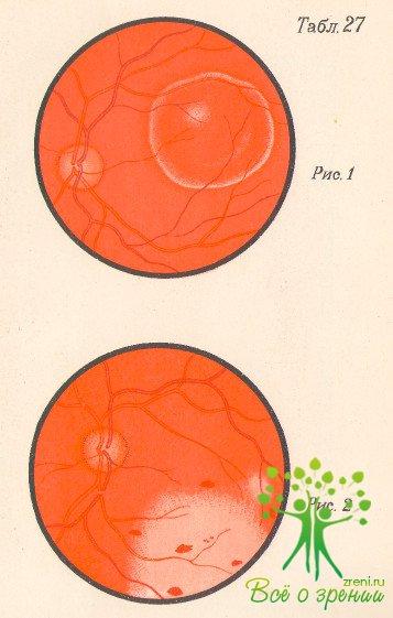 цистицерка вид паразита в головном мозге человека