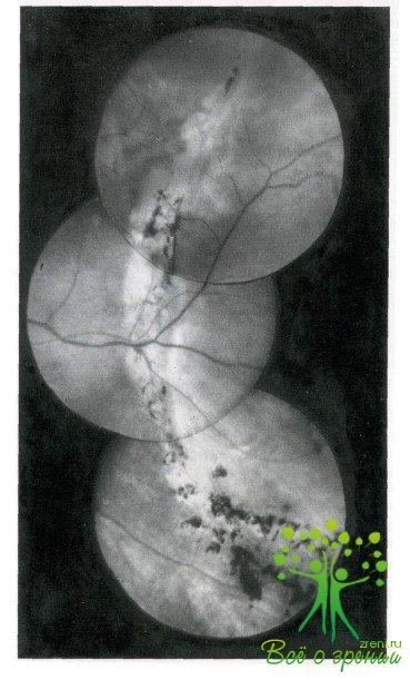 Головная боль в области лба и глаз при гайморите