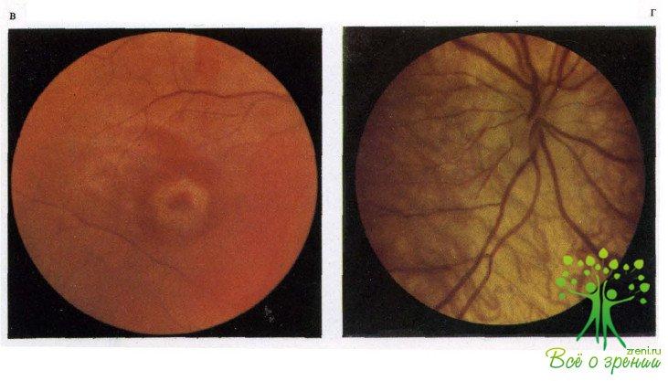 народные методы лечения зрительного нерва термоколготки Специальная линия