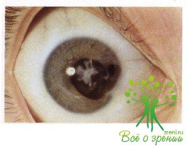 Стационарные травматические катаракты часто сочетаются с патологией других структур глазного яблока: роговицы