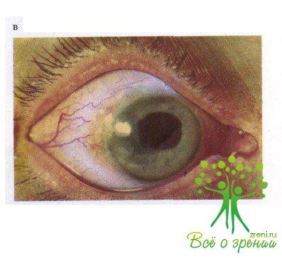 Зрелая и незрелая катаракта