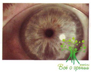Глазное заболевание глаукома