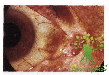 Атлас глазных болезней   Новообразования соединительной оболочки глаза. Эпибульбарные опухоли