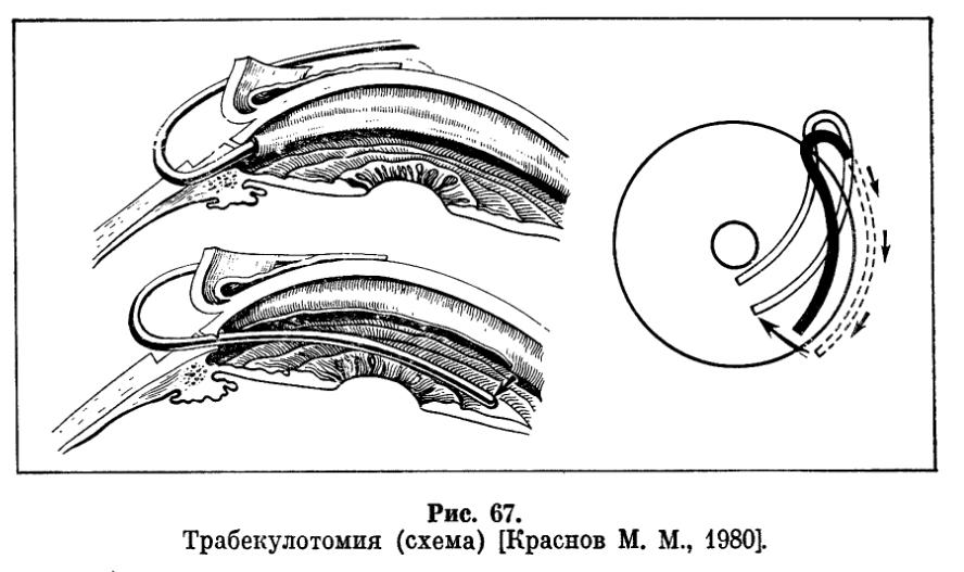 Ириденклейзис фото