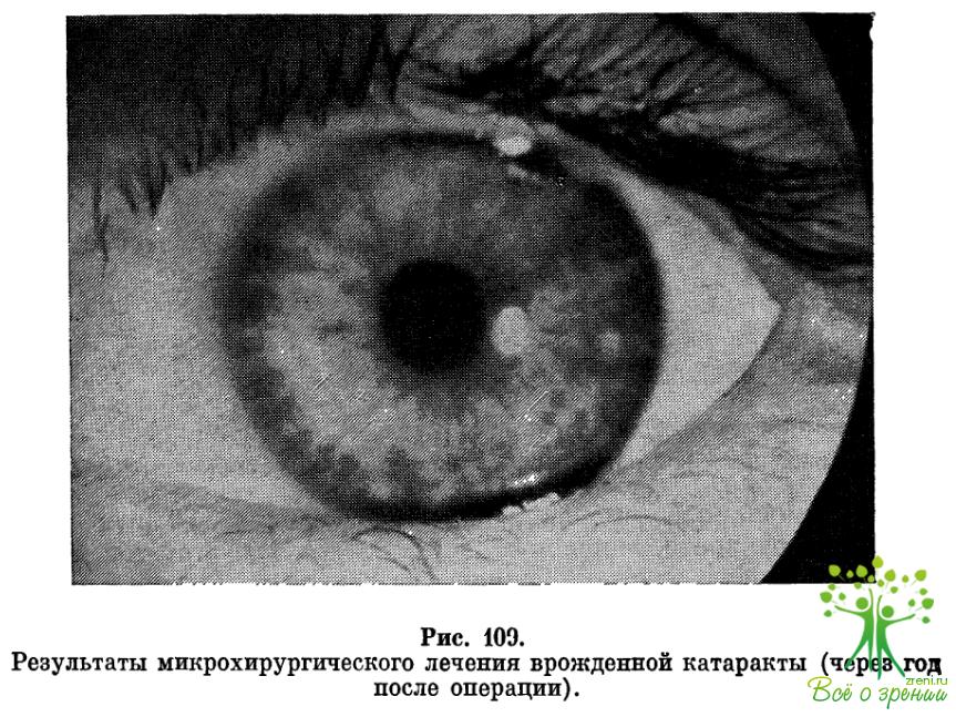 Амблиопия обскурационная фото
