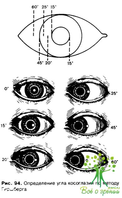 Твердые контактные линзы для коррекции зрения