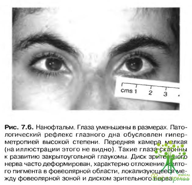 Криптофтальмоз фото