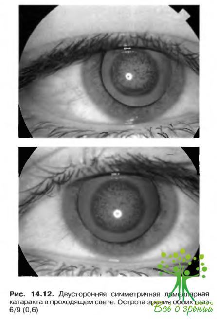 У родителей с плохим зрением
