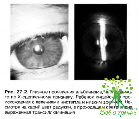 Улучшить зрение перед окулистом
