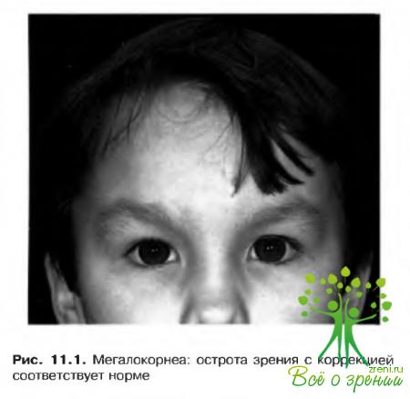 Астигматизм 1.5 диоптрий у ребенка